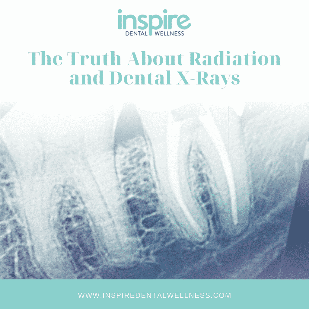 Radiation-and-Dental-X-Rays