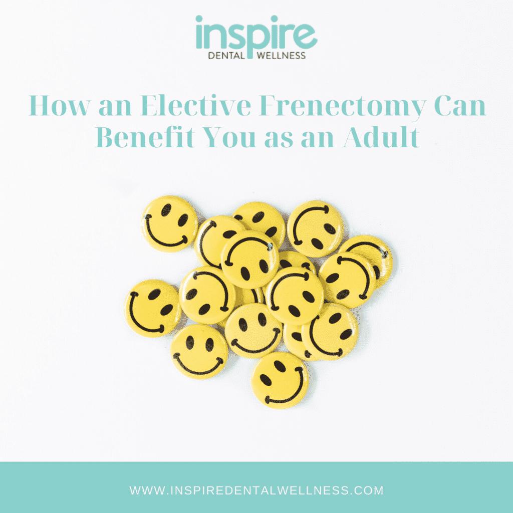 Elective Frenectomy Blog Image