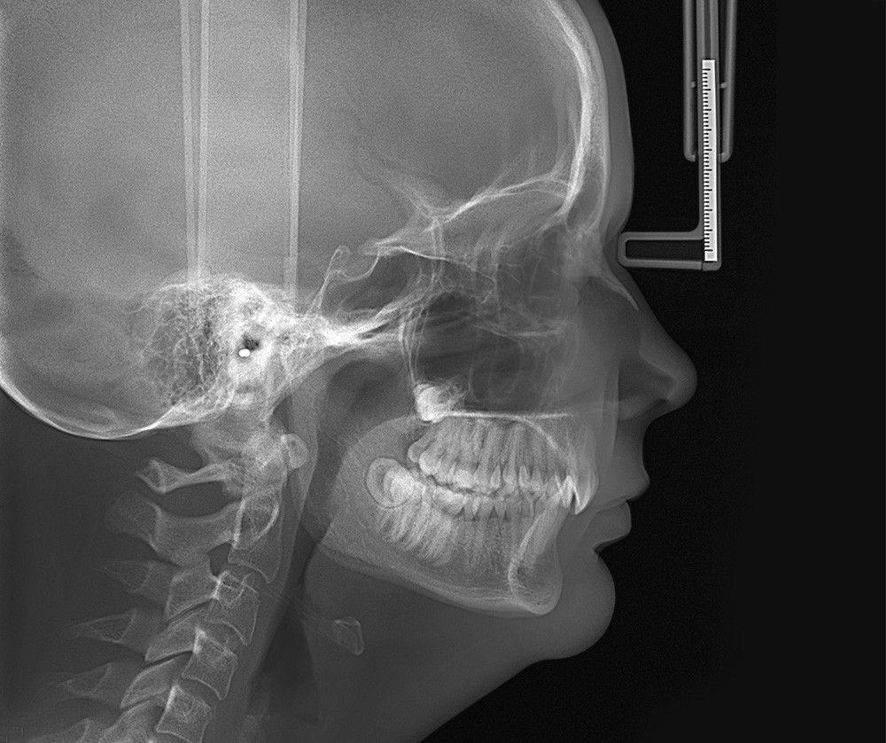 Ceph Image Orland Park Dentist