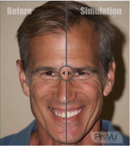 Smile Simulation Software