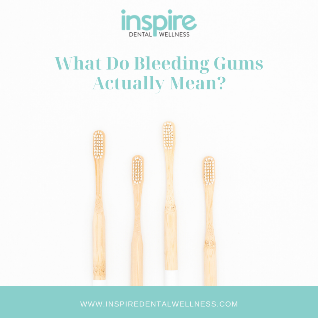 Bleeding Gums Blog Graphic